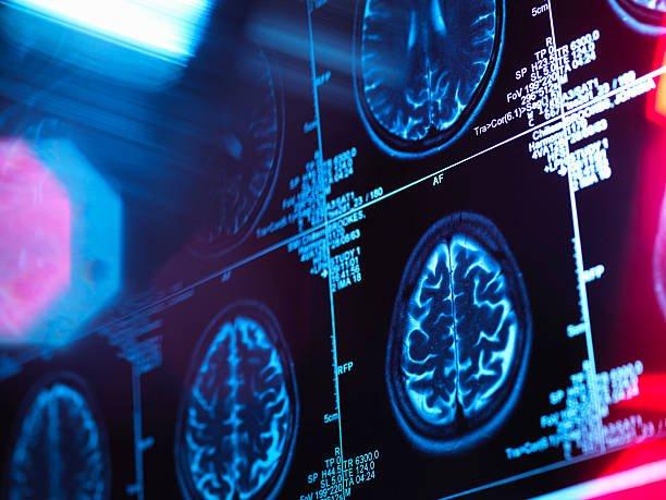 La sinergia entre Deep Learning y la Neurociencia